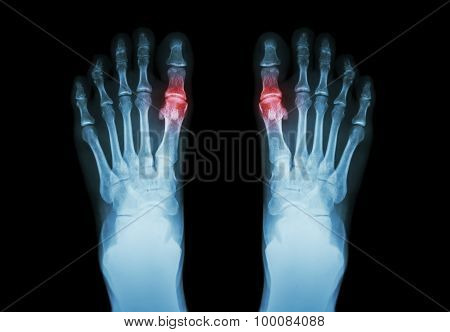 Gout , Rheumatoid Arthritis (Film X-ray Both Foot And Arthritis At First Metatarsophalangeal Joint)