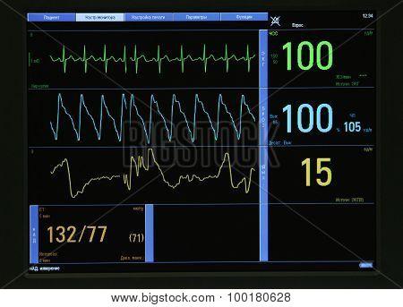 Ecg Monitor Interface