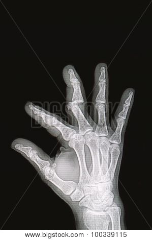 Wrist And Hand  X-rays Image Show Fracture And Dislocation Bone