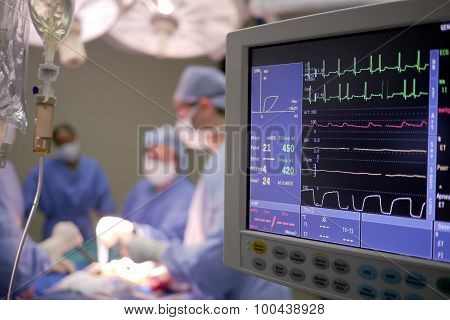 heart monitor in surgery
