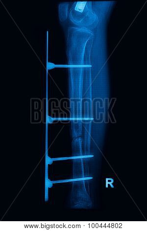 Leg X-rays Image Showing Plate And Screw External Fixation Tibia And Fibula Bone