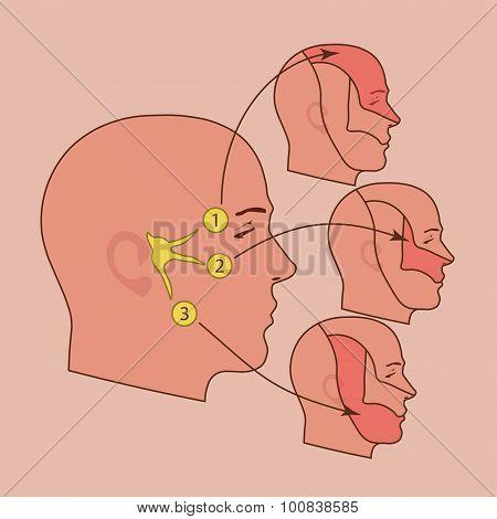 The trigeminal nerve