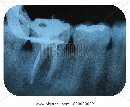 X-Ray Negative of a Endodontic Tooth with a Filled Tooth Nearby