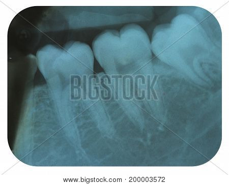 X-Ray Negative of The Molar Teeth and a Impacted Tooth
