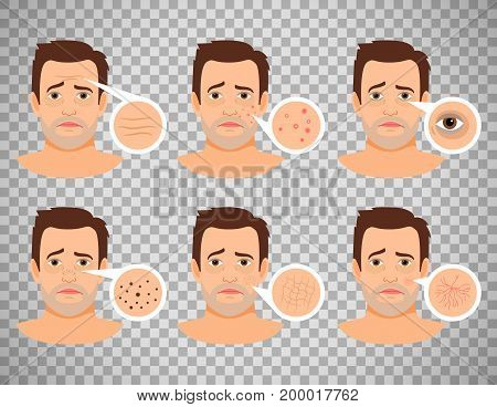 Man skin problems vector illustration. Male face with pimples and dark spots, wrinkles and acne isolated on transparent background