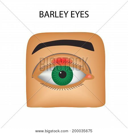Barley eyes. Purulent inflammation. The structure of the eye. Infographics. Vector illustration on isolated background.