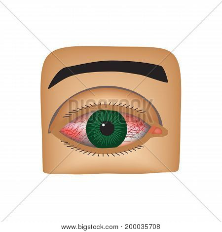 Conjunctivitis. Redness and inflammation of the eye. Vessels in the eye. Infographics. Vector illustration on isolated background.
