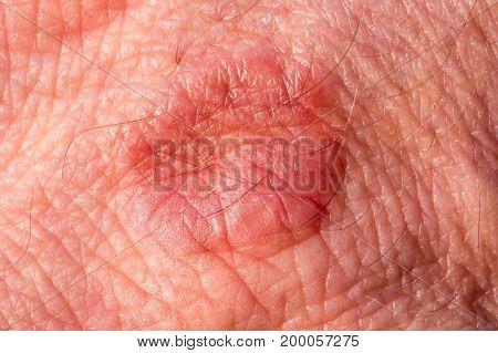 Details of a human hand with rash/eczema