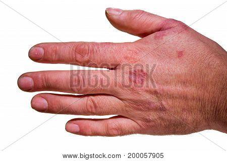 Human hand  with rash / eczema Isolated on white