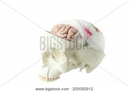 Human brain model with gauze wrapping demonstrating brain injury isolated on the white background