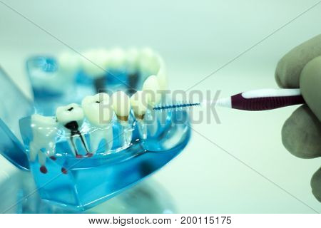 Interdental Teeth Cleaning