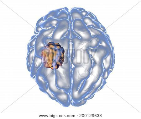 Aspergilloma of the brain, 3D illustration. Also known as mycetoma, or fungus ball, an intracranial lesion produced by fungi Aspergillus in immunocompromised patients poster