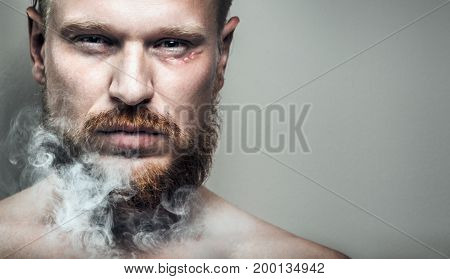 Portrait Of Strained Focused Man With A Scar On His Face In Cigarette Smoke.