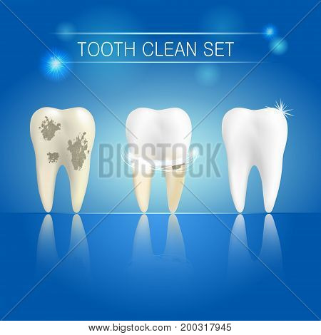 Set of clean and dirty tooth on blue background clearing tooth process. Teeth whitening concept. Vector illustration