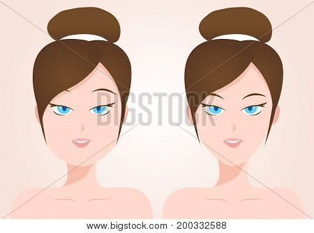 liposuction concept . fat and thin women vector