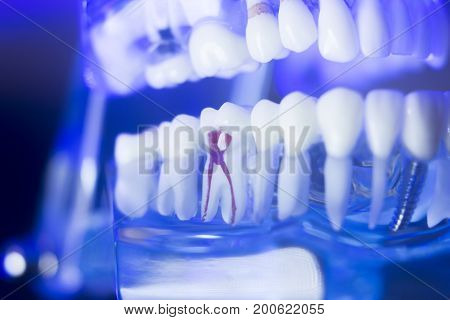 Dental Alignment Teeth Model
