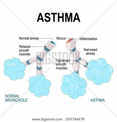 asthma. alveoli and bronchiole. normal and asthmatic. Part of Human lungs