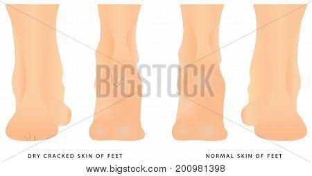 Cracks on Heels. Female legs with cracks. Concept of foot fungus with cracked heel. Groomed dry skin on feet and heels.