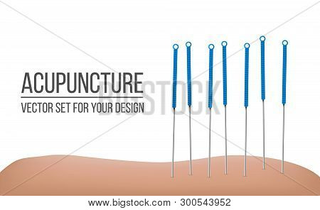 Creative Vector Illustration Of Acupuncture Therapy Isolated On Transparent Background. Art Design S