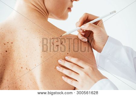 Cropped View Of Dermatologist Applying Marks On Skin Of Naked Woman With Melanoma Isolated On White
