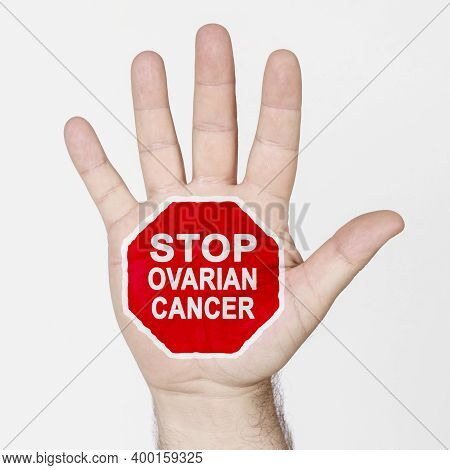 Medicine Concept. On The Palm Of The Hand There Is A Stop Sign With The Inscription - Stop Ovarian C