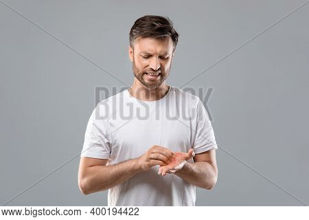 Annoyed Middle Aged Bearded Man Scratching His Red Palm On Grey Studio Background, Copy Space. Cauca