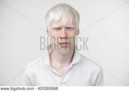 Portrait Of An Albino Man In Studio Dressed T-shirt Isolated On A White Background. Abnormal Deviati