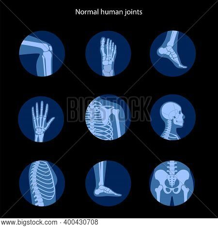 Spine, Knee, Skull And Other Human Joints Icon. Normal Bones Anatomy. Skeletal X Ray Medical Poster.