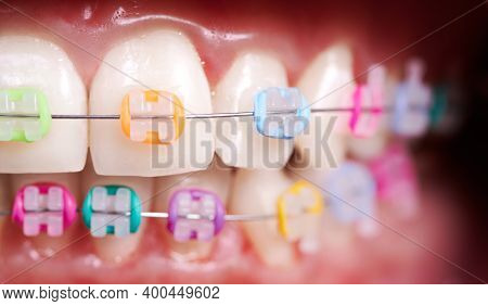 Macro Snapshot Of Dental Occlusion, Teeth And Ceramic Braces With Colorful Rubber Bands On Them. Con