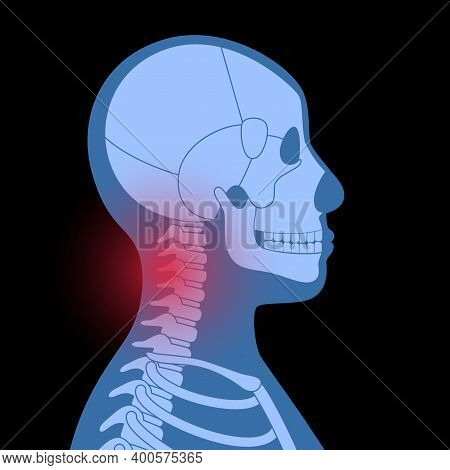 Pain In Neck Or Spine Bones. Skeleton X Ray Silhouette Medical Poster. Joints And Cartilage In Human
