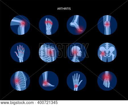 Set With Spine, Knee, Wrist And Other Joint Icons For Clinic. Pain In The Human Body, Anatomical Log