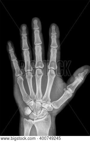 Hand Radiography Of A Hospital Patient, Acquired With Digital X-ray System
