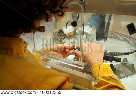 Dentures And Dentistry. Dental Prosthesis, Dentures, Prosthetics Work. Dental Technician In Pricess