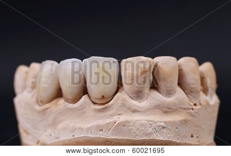 Close up of dental prothetic jaw.