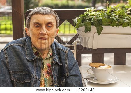 Disabled man with cerebral palsy closeup portrait in outdoor cafe.