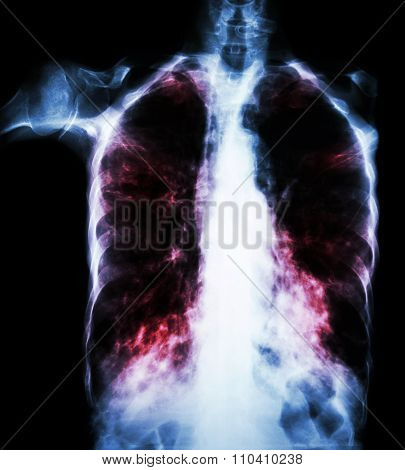 Pulmonary Tuberculosis  ( Film Chest X-ray :  Interstitial Infiltrate Both Lung Due To Mycobacterium