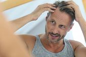 Middle-aged man concerned by hair loss poster