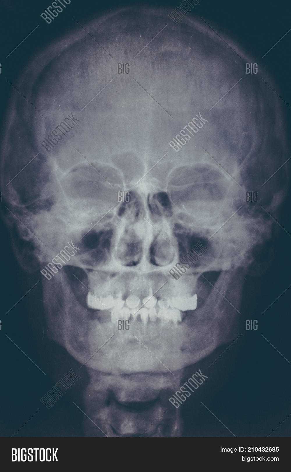 X Ray Image Roentgen Image Photo Free Trial Bigstock