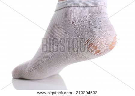 Ripped white sock on male leg isolated. A man lost everything when he took a loan from a bank on unfavorable terms. It impossible to make payments with shares of shares stripped to cracks in the heel