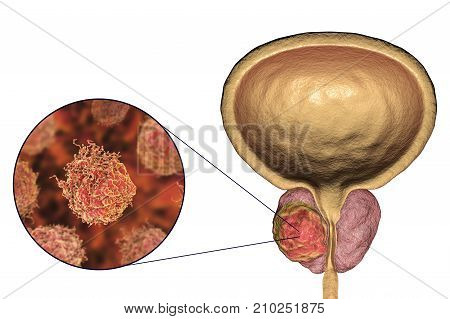 Prostate cancer, 3D illustration showing tumor inside prostate gland and closeup view of cancer cells poster