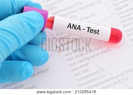 Blood sample with requisition form for ANA test