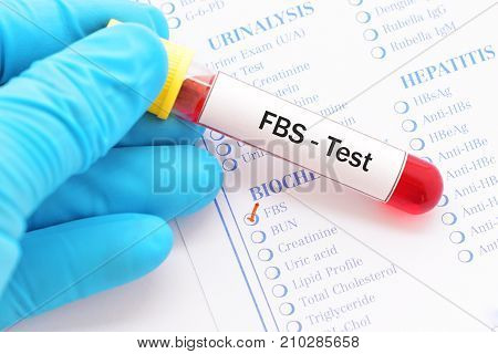 Blood sample with requisition form for FBS test