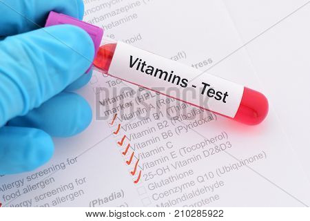 Blood sample with requisition form for vitamin test