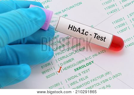 Blood sample with requisition form for hemoglobin A1c (HbA1c) test