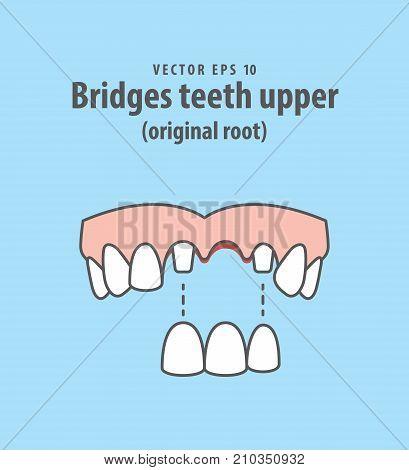 Bridges Teeth Upper (original Root) Illustration Vector On Blue Background. Dental Concept.
