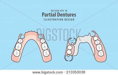 Partial Dentures illustration vector on blue background. Dental concept.
