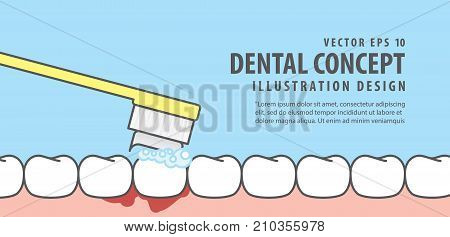 Banner Bleeding When Brushing Illustration Vector On Blue Background. Dental Concept.