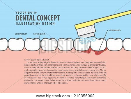 Layout Bleeding When Brushing Illustration Vector On Blue Background. Dental Concept.