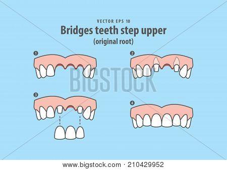 Bridges Teeth Step Upper (original Root) Illustration Vector On Blue Background. Dental Concept.