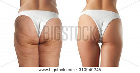 Female Buttocks Before And After Treatment Anti Cellulite Massage. Cellulite Treatment